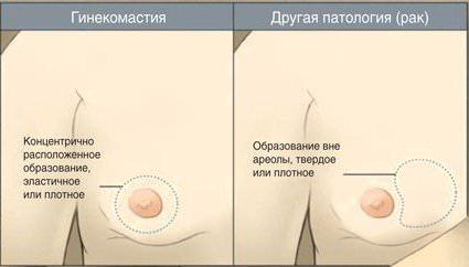 Повышается потенция после удаления гинекомастии