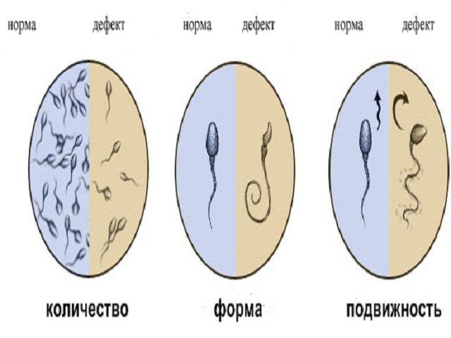 Лейкоспермия лечение