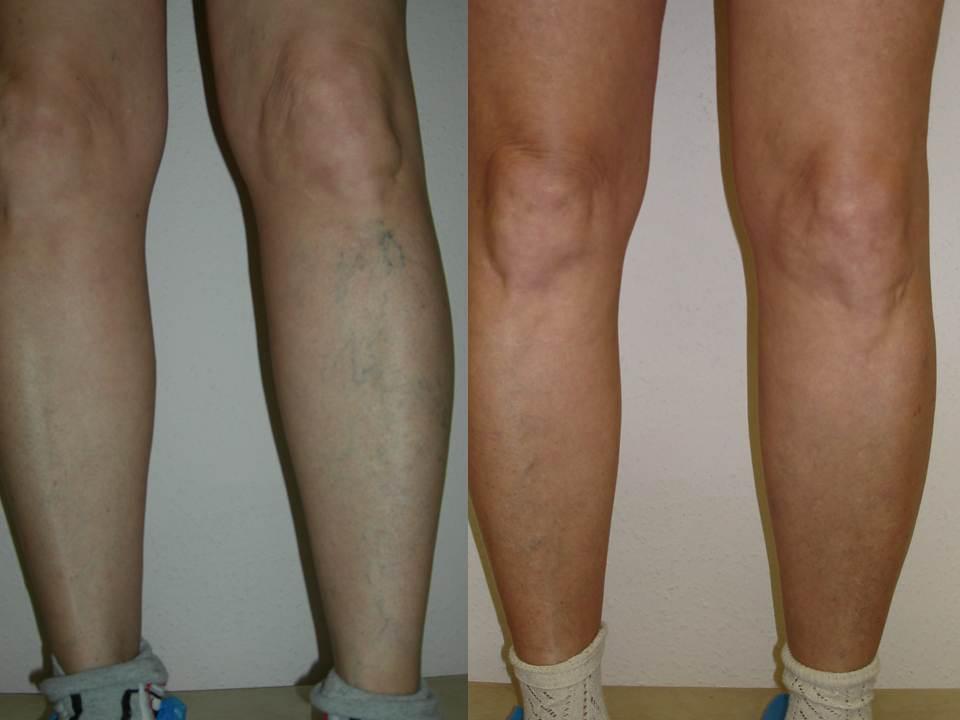 Операция на варикозное расширение вен на ногах цена