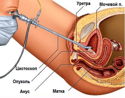 Цистоскопия у мужчин