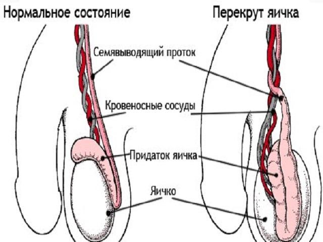 Воспаление яичек