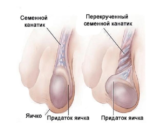Киста Головки придатка правого яичка