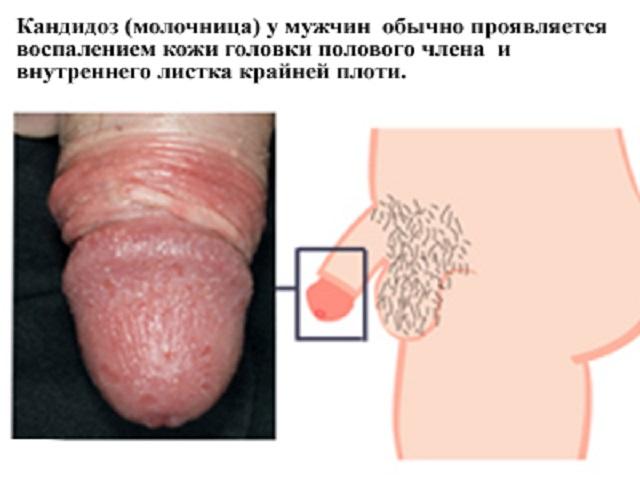 Сыпь на Головке полового члена фото