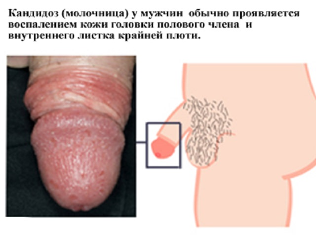 Определение заболевания по сыпи фото