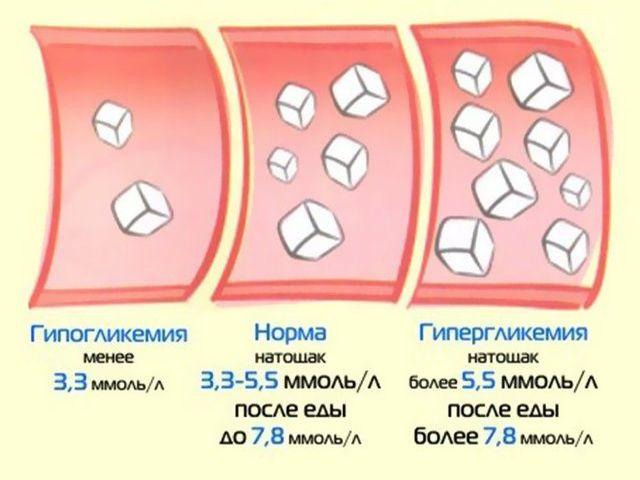 Сахарного диабета норма сахара