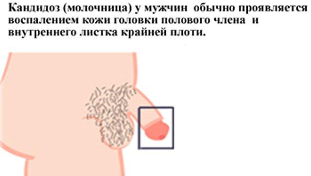 Грибок на половом органе других тела