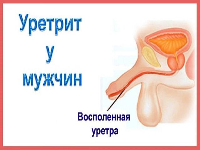 Кровавая сперма из члена симптомы