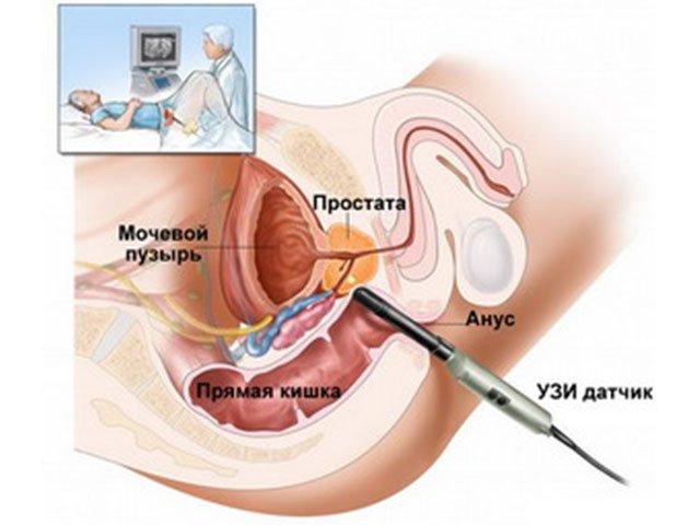 мочеполовая система