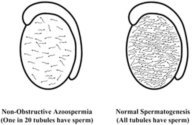 Форма азоспермии если имеются клетки сперматогенеза