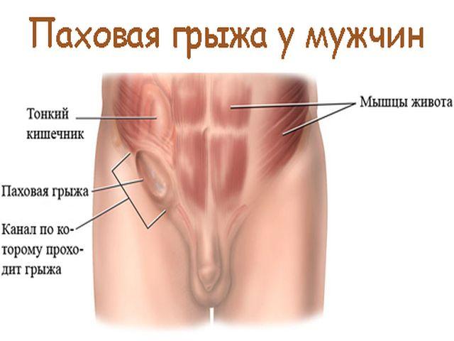 патологическая болезнь в нижней части живота