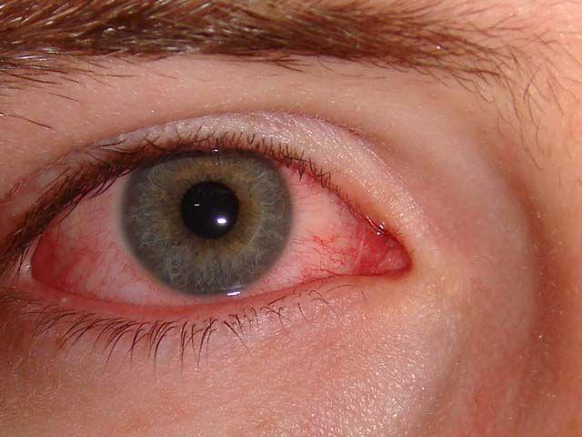После воспаления легких под глазами отеки