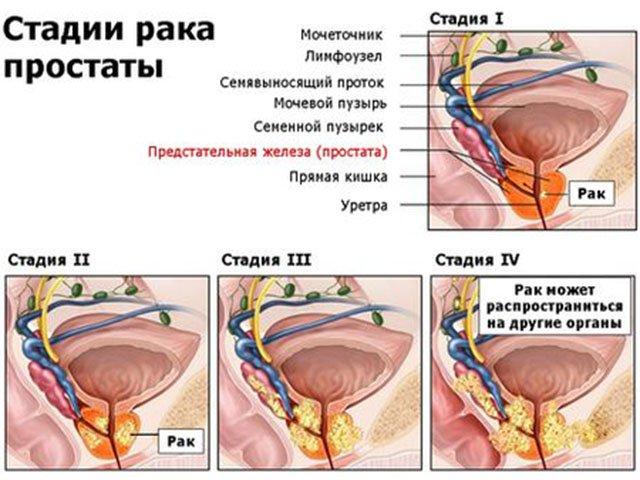 Народные лечения рак простаты 4 стадии