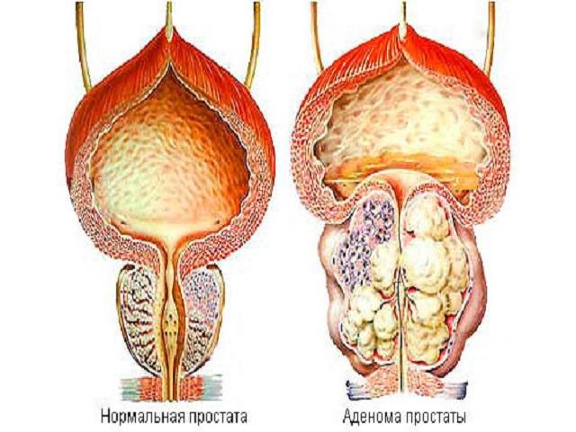 Фитотерапия при хронической простатите