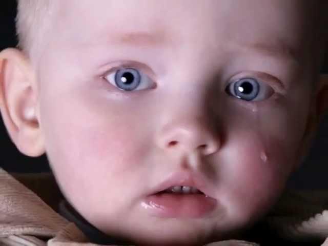 детская дистрофия