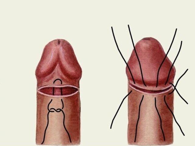 Относительный фимоз лечение без операции