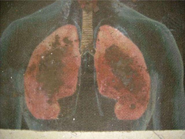 Сигареты бросай курить