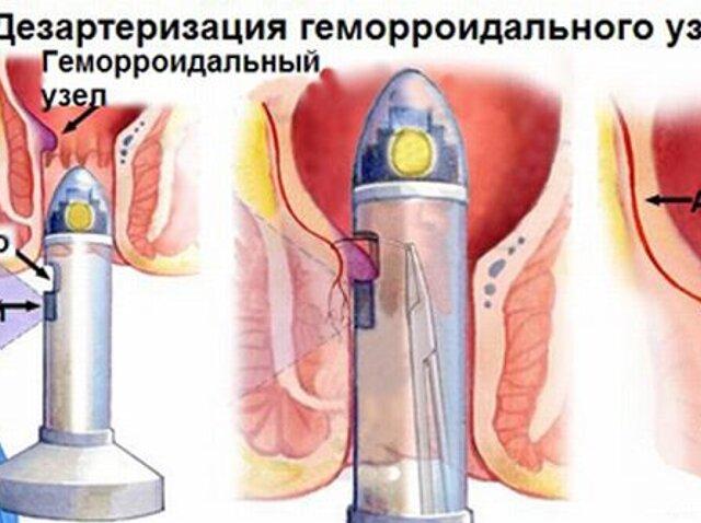 Удаление геморроя лазером Подготовка