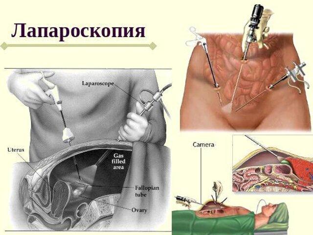 Спинальная анастезия при операции мармара