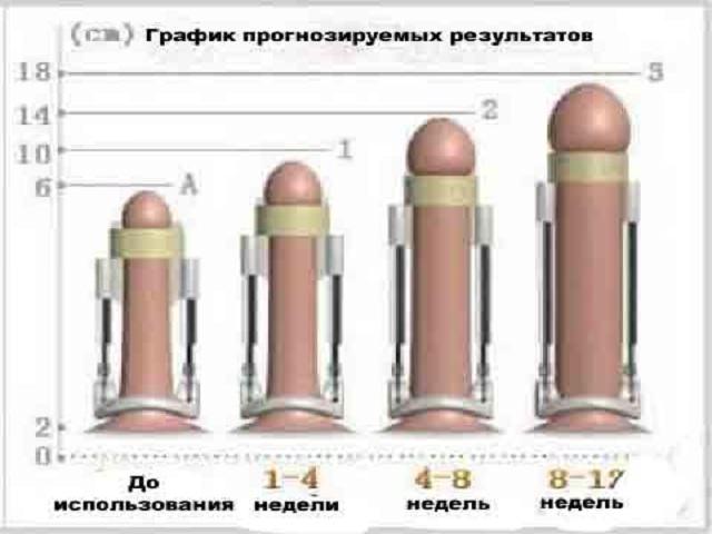 Сколько см должен быть член в 14 лет и как увеличить пенис