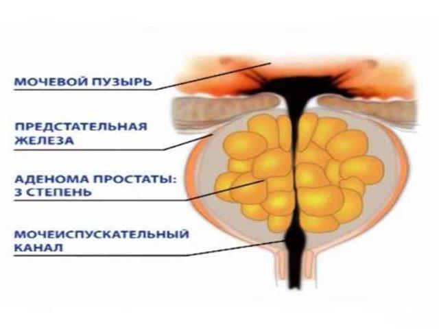 Аденома простаты симптомы