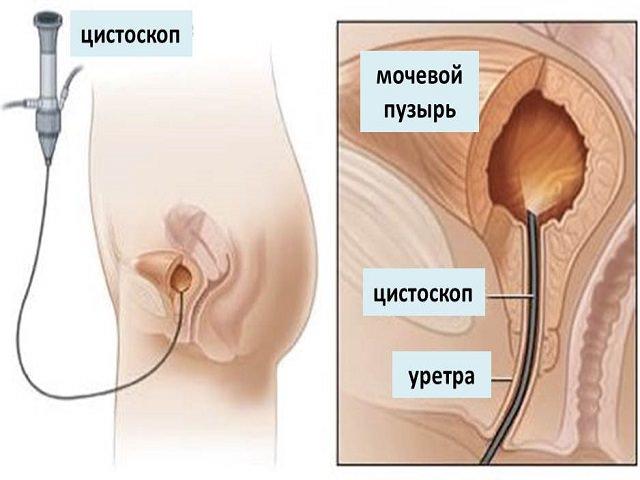Таблица анализов у Мужчин флоры уретры
