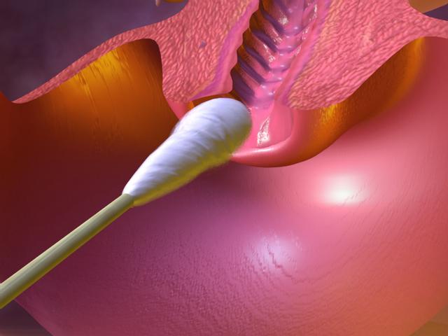 Аналис внешний на флору у Мужчин