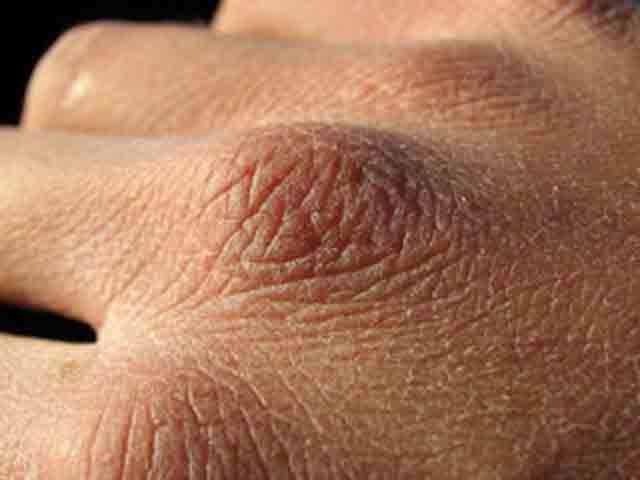 Раздражение на лице кожа шелушиится кожа