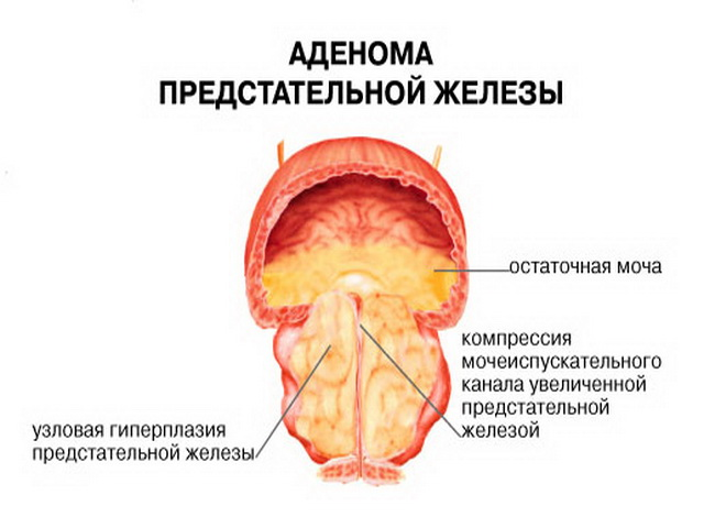 Удаление аденомы простаты