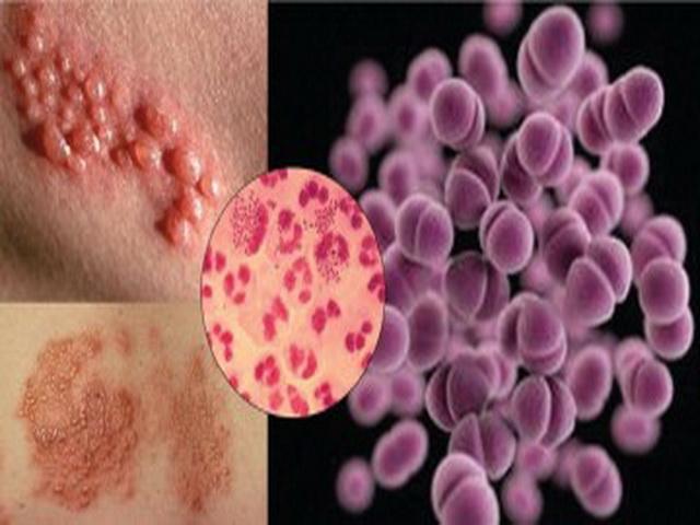 Половые инфекции