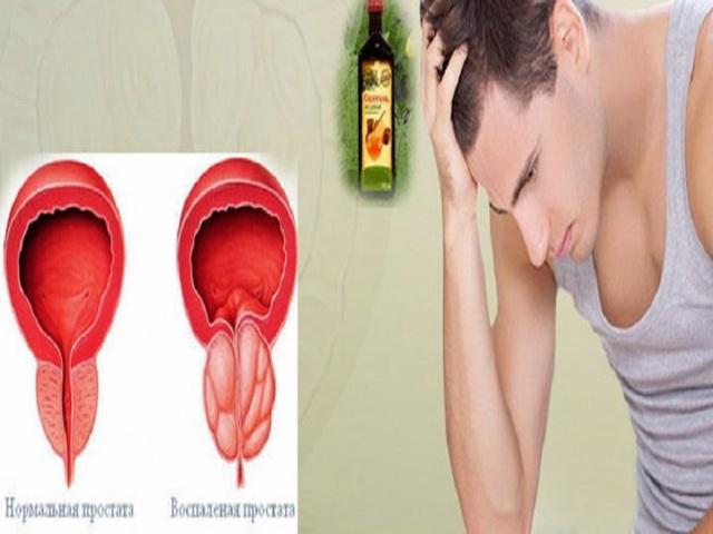 признаки простатита