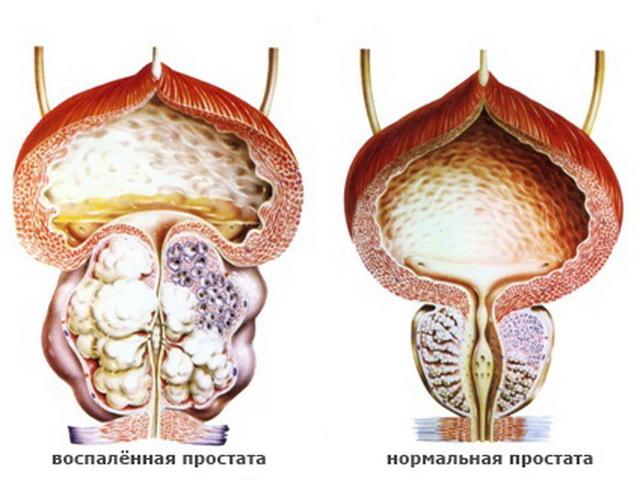 Боли предстательной железе