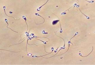 vse-spermatozoidi-nepodvizhni
