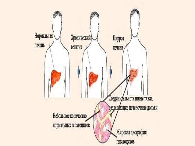 Алкогольная эпилепсия симптомы перед приступом