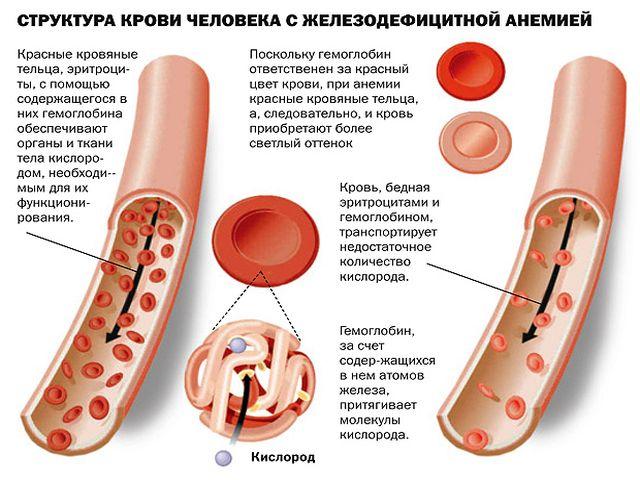 структура крови человека с анемией