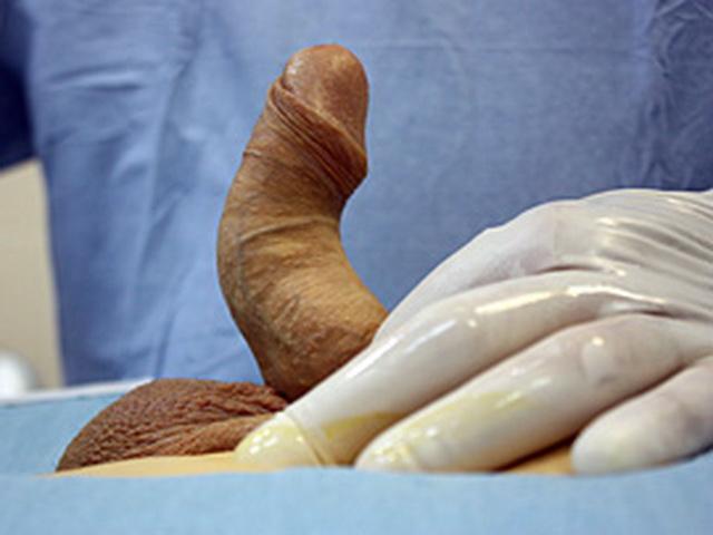 исправление дефекта полового органа
