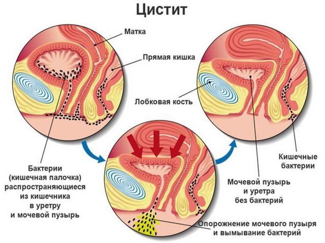 Болезни ранический простатит спермих