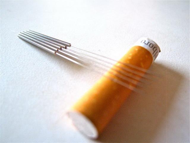 Иглотерапия от курения