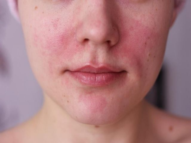 красные пятна на коже