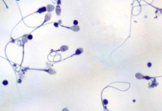uvelichenie-leykotsitov-v-sperme