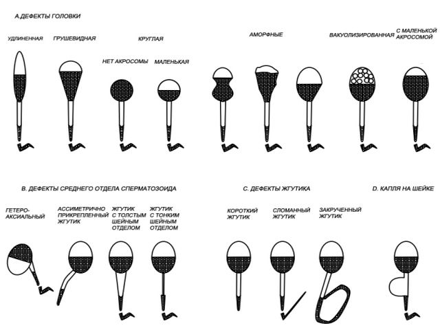 patologii-morfologii-spermatozoidov