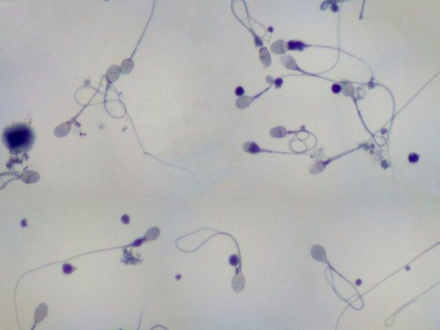 kak-lechitsya-agregatsiya-spermatozoidov