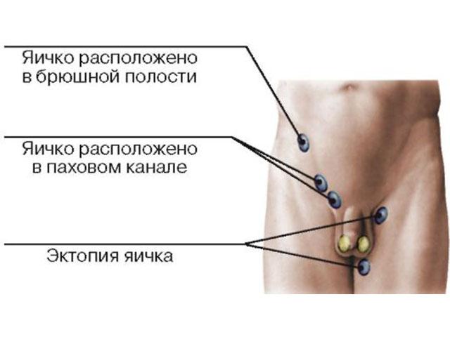 Эктопия яичка