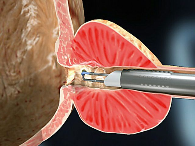 Лечение при аденоме предстательной железы 1 степени