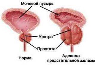 Эффективные упражнения от простатита