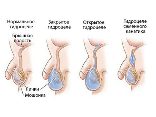 Факторы влияющие на образование сперматозойдов