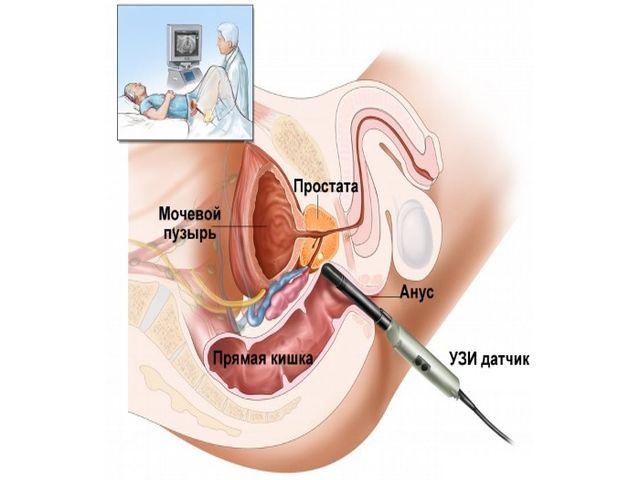 Диагностика и лечение хронической формы простатита