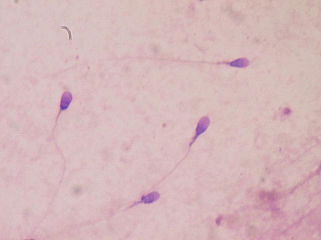 Олигозооспермия лечение в домашних условиях