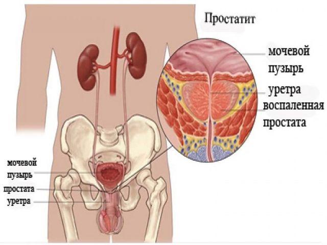 Простатит, причины и диагностика простатита в клинике ...