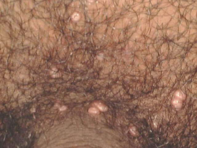 Сонник черви под кожей на руках