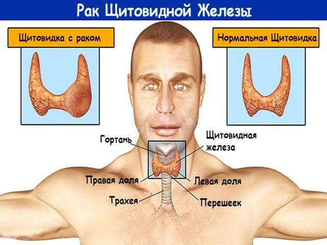 Симптомы заболевания щитовидной железы у Мужчин